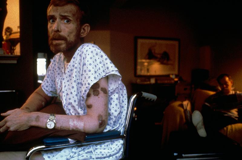 Das Siegerbild von 1987 fokussierte auf das Thema Aids.