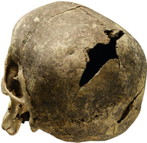 Skull of a 20 to 25 year old woman with a blow injury. 3,345–3,095 BC. Germany, Saxony-Anhalt, Salzmünde.