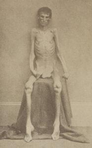 Andersonville (Géorgie/USA). Prisonnier de guerre nordiste à la libération du camp, en 1865.